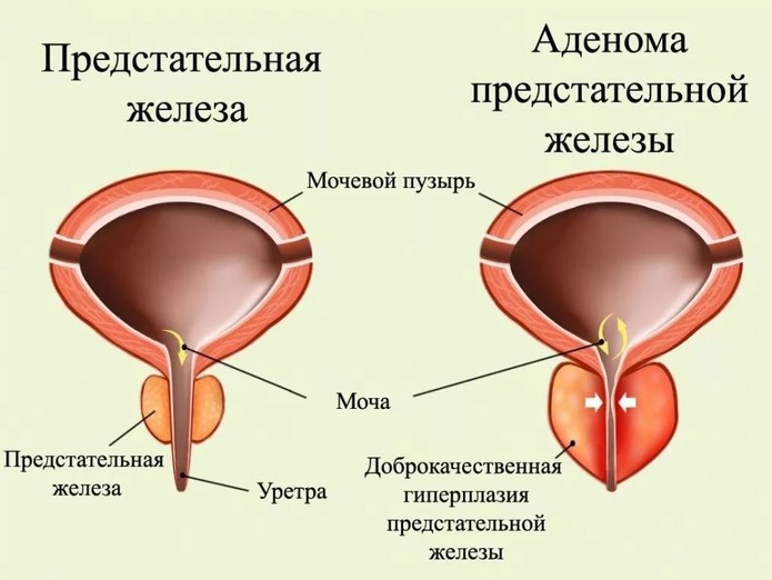 Аденома предстательной железы и простатит