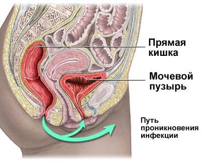 Инфекции мочевыводящих путей у женщин: симптомы, лечение, причины ...