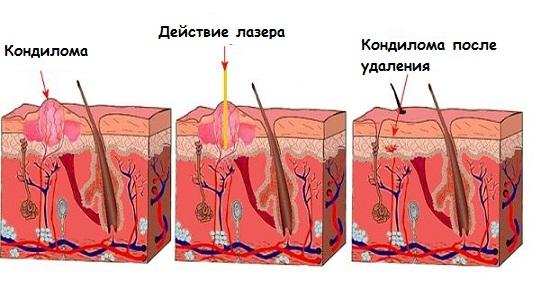 Кондиломами