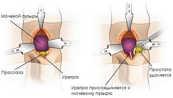 Рак простаты железы