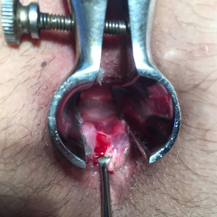 Как лечить анальную трещину